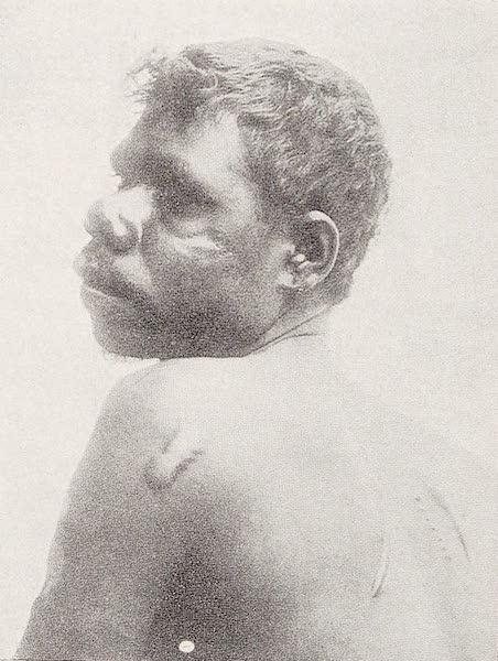 An Australoid Type from Northern Queensland