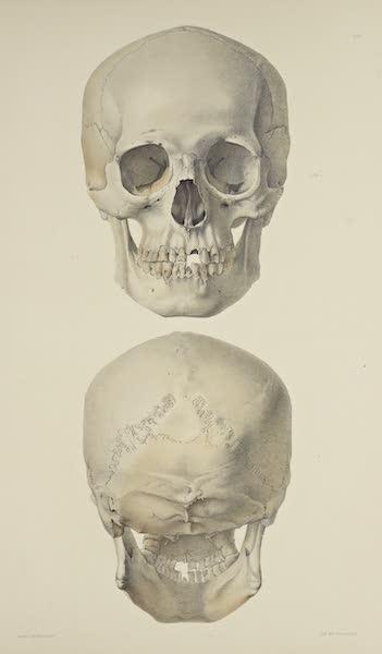 The Necropolis of Ancon Vol. 3 - Slightly deformed Skull [I] (1880)