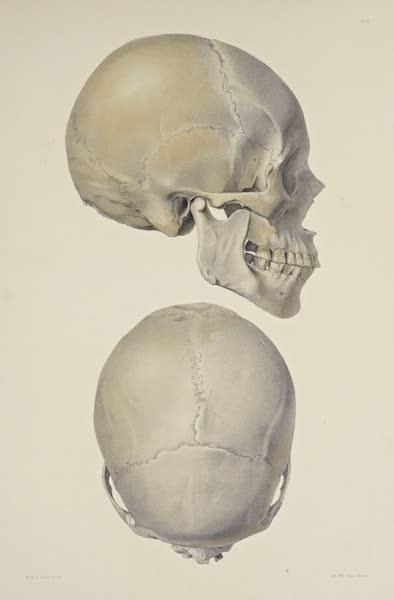 The Necropolis of Ancon Vol. 3 - Slightly deformed Skull [II] (1880)