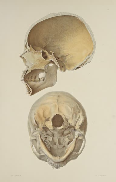 The Necropolis of Ancon Vol. 3 - Slightly deformed Skull [III] (1880)