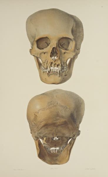 The Necropolis of Ancon Vol. 3 - Greatly deformed Skull [I] (1880)
