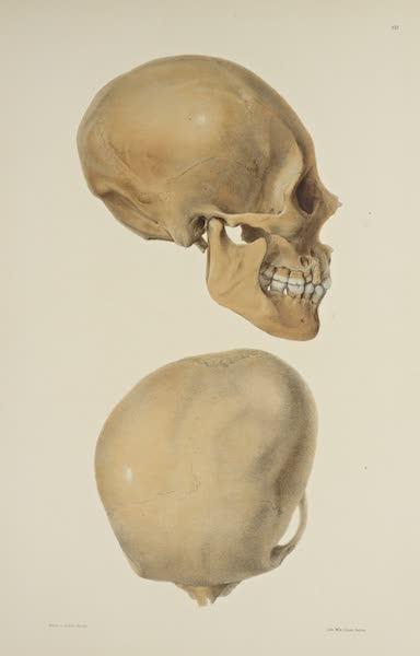 The Necropolis of Ancon Vol. 3 - Greatly deformed Skull [II] (1880)