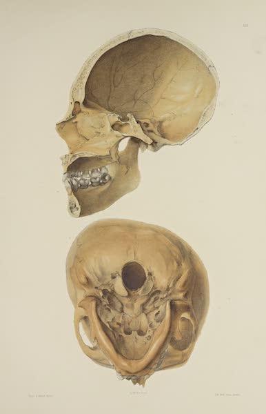 The Necropolis of Ancon Vol. 3 - Greatly deformed Skull [III] (1880)