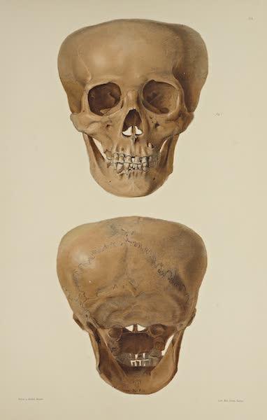 The Necropolis of Ancon Vol. 3 - Greatly deformed Skull [IV] (1880)