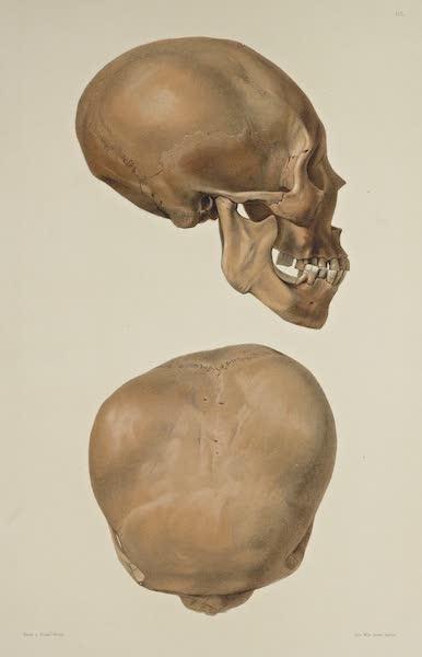 The Necropolis of Ancon Vol. 3 - Greatly deformed Skull [V] (1880)