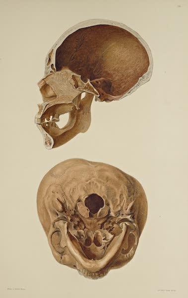 The Necropolis of Ancon Vol. 3 - Greatly deformed Skull [VI] (1880)